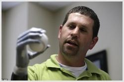 Protese Bionica